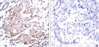Immunohistochemistry (Formalin/PFA-fixed paraffin-embedded sections) - Anti-c-Myc (phospho T58) antibody (ab28842)