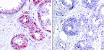 Immunohistochemistry (Formalin/PFA-fixed paraffin-embedded sections) - Anti-c-Jun (phospho S243) antibody (ab28846)