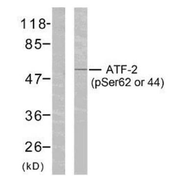 Western blot - Anti-ATF2 (phospho S62 + S44) antibody (ab28847)