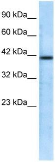 Western blot - Anti-CHRFAM7A antibody (ab28885)