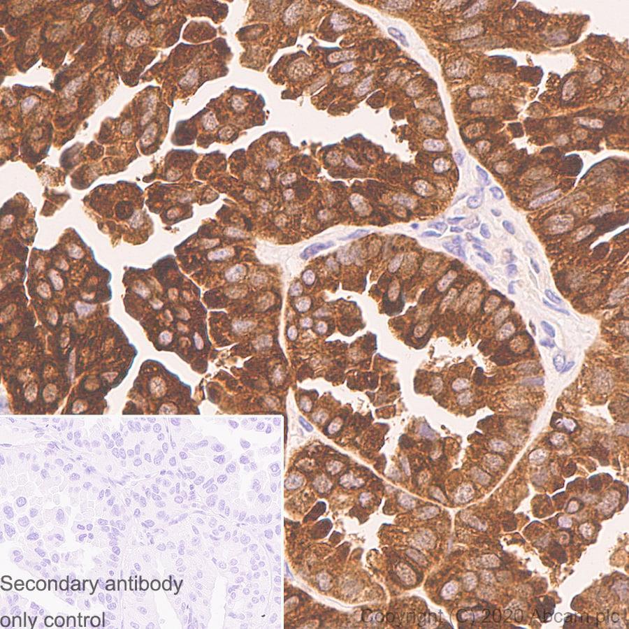 Immunohistochemistry (Formalin/PFA-fixed paraffin-embedded sections) - Anti-SQSTM1 / p62 antibody [3/P62 LCK LIGAND] (ab280086)