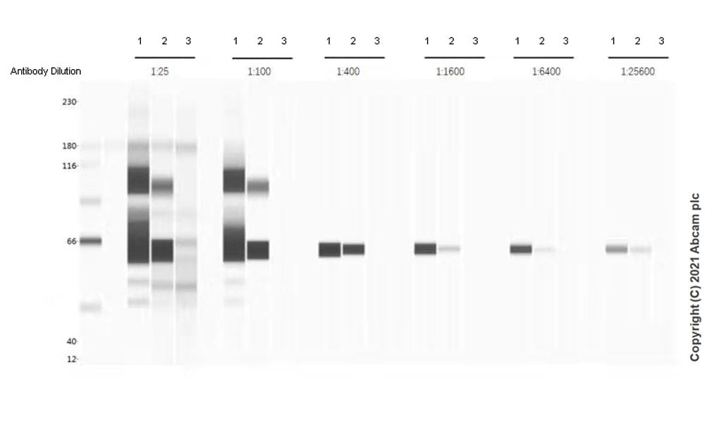 Western blot - Anti-SARS-CoV-2 nucleocapsid protein antibody [EPR24334-118] - BSA and Azide free (ab280201)