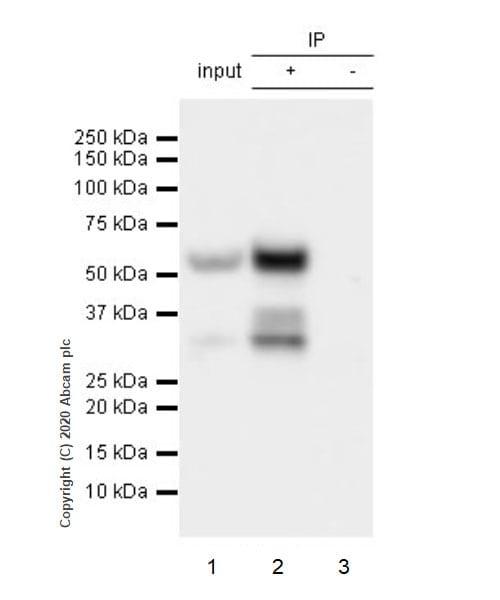 Immunoprecipitation - Anti-SARS-CoV-2 nucleocapsid protein antibody [EPR24334-118] - BSA and Azide free (ab280201)