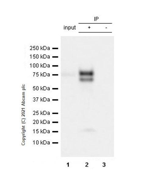 Immunoprecipitation - Anti-IL-6R antibody [EPR24322-143] - BSA and Azide free (ab280573)