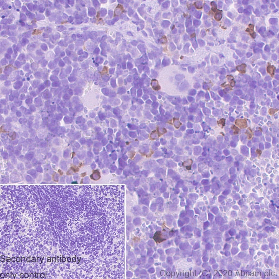 Immunohistochemistry (Formalin/PFA-fixed paraffin-embedded sections) - Mouse IgG2b monoclonal [R311-MouseIgG2b]-Isotype control-BSA and Azide free (ab281638)