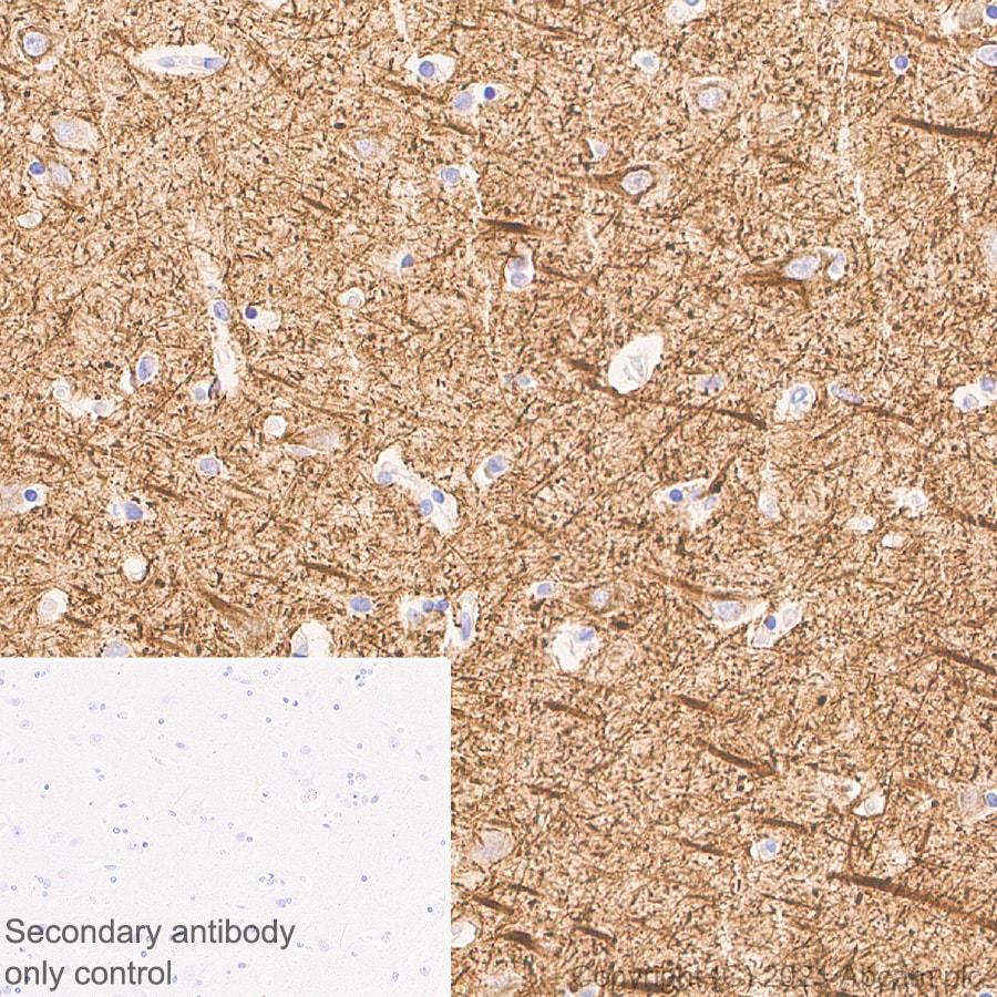Immunohistochemistry (Formalin/PFA-fixed paraffin-embedded sections) - Anti-160 kD Neurofilament Medium antibody [EPR23510-76] - BSA and Azide free (ab281830)