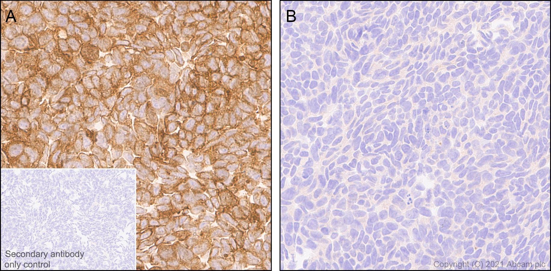 Immunohistochemistry (Formalin/PFA-fixed paraffin-embedded sections) - Anti-Calcineurin A antibody [EPR24997-22] (ab282104)