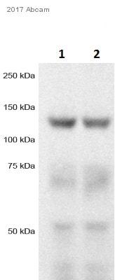 Western blot - Anti-TRPM8 antibody (ab3243)