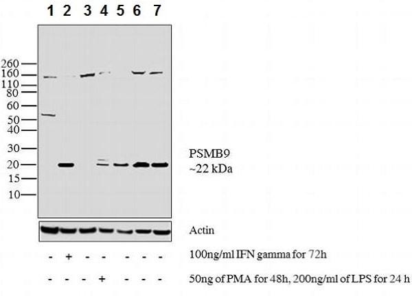 Western blot - Anti-Proteasome 20S LMP2 antibody (ab3328)