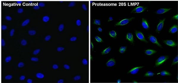 Immunocytochemistry/ Immunofluorescence - Anti-Proteasome 20S LMP7 antibody (ab3329)