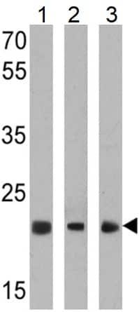 Western blot - Anti-PSMB5/MB1 antibody (ab3330)
