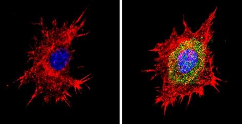 Immunocytochemistry/ Immunofluorescence - Anti-Proteasome 20S beta 6 antibody (ab3331)
