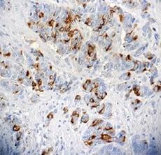 Immunohistochemistry (Formalin/PFA-fixed paraffin-embedded sections) - Anti-BCA225 antibody [CU18] (ab3360)