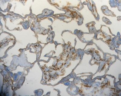 Immunohistochemistry (Frozen sections) - Anti-Folate Binding Protein/FBP antibody [LK26] (ab3361)