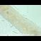 Immunohistochemistry (Formalin/PFA-fixed paraffin-embedded sections) - Anti-Caveolin-2 (phospho Y19) antibody (ab3417)