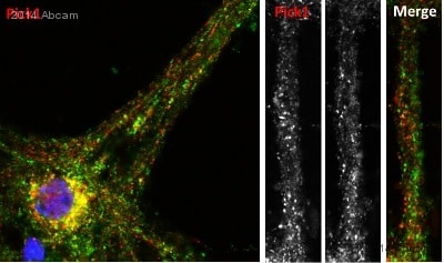 Immunocytochemistry/ Immunofluorescence - Anti-PICK1 antibody (ab3420)