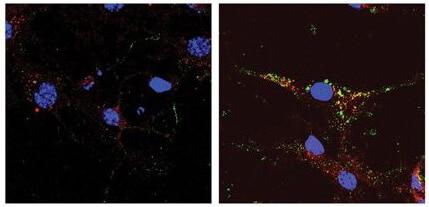 Immunocytochemistry/ Immunofluorescence - Anti-SCAMP5 antibody (ab3432)