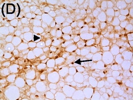 Immunohistochemistry (Formalin/PFA-fixed paraffin-embedded sections) - Anti-NFAT5 antibody - ChIP Grade (ab3446)