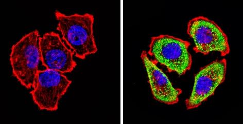 Immunocytochemistry/ Immunofluorescence - Anti-Adenosine Receptor A2a antibody (ab3461)