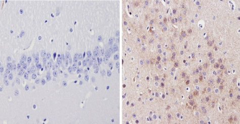 Immunohistochemistry (Formalin/PFA-fixed paraffin-embedded sections) - Anti-alpha 1 Adrenergic Receptor/ADRA1 antibody (ab3462)