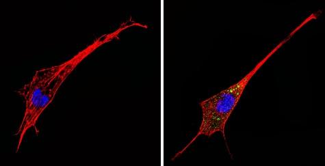Immunocytochemistry/ Immunofluorescence - Anti-alpha 1 Adrenergic Receptor/ADRA1 antibody (ab3462)