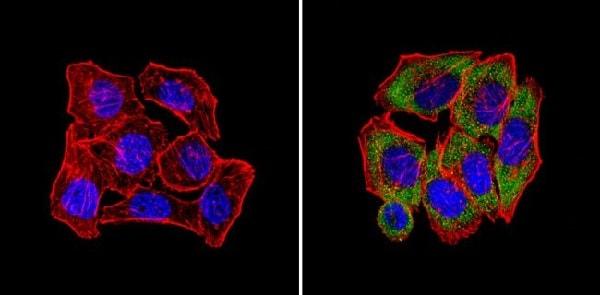 Immunocytochemistry/ Immunofluorescence - Anti-CPEB1 antibody (ab3465)