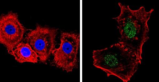 Immunocytochemistry/ Immunofluorescence - Anti-Nuclear Receptor Corepressor NCoR antibody - ChIP Grade (ab3482)
