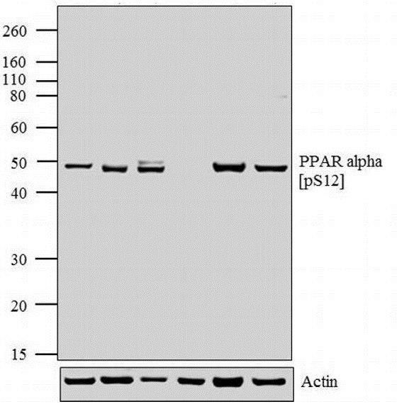 Western blot - Anti-PPAR alpha (phospho S12) antibody (ab3484)