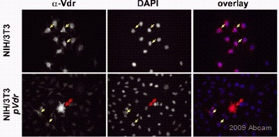 Immunocytochemistry/ Immunofluorescence - Anti-Vitamin D Receptor  antibody - ChIP Grade (ab3508)