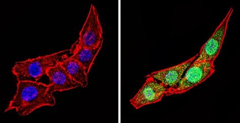 Immunocytochemistry/ Immunofluorescence - Anti-Calsequestrin antibody (ab3516)