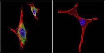 Immunocytochemistry/ Immunofluorescence - Anti-iNOS antibody (ab3523)