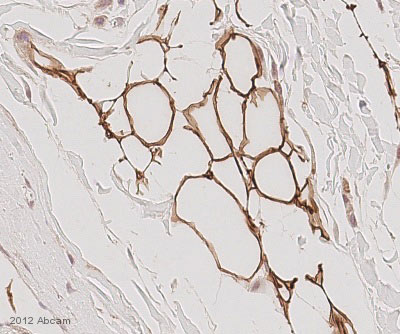 Immunohistochemistry (Formalin/PFA-fixed paraffin-embedded sections) - Anti-Perilipin-1 antibody (ab3526)
