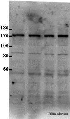 Western blot - Anti-Calcium Pump PMCA3 ATPase antibody (ab3530)