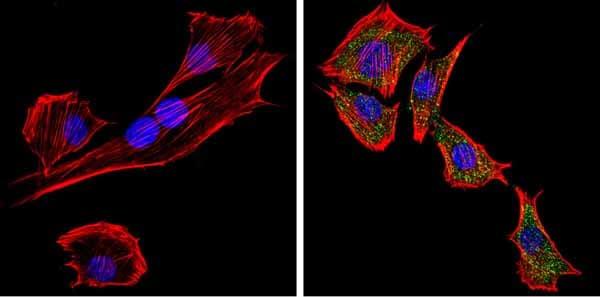 Immunocytochemistry/ Immunofluorescence - Anti-PCSK2 antibody (ab3533)