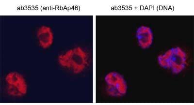 Immunocytochemistry/ Immunofluorescence - Anti-RbAp46 antibody (ab3535)