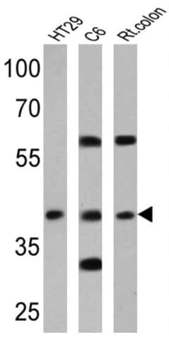 Western blot - Anti-Cannabinoid Receptor II antibody (ab3561)