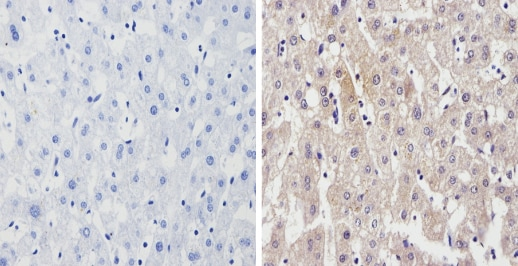 Immunohistochemistry (Formalin/PFA-fixed paraffin-embedded sections) - Anti-Cytochrome P450 4A/CYP4A11 antibody (ab3573)