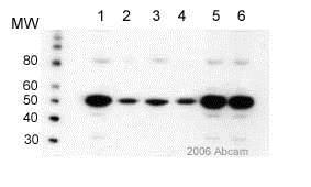 Western blot - Anti-Estrogen Receptor beta antibody (ab3576)