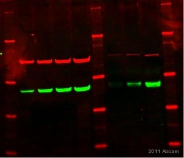 Western blot - Anti-Estrogen Receptor beta antibody - ChIP Grade (ab3577)