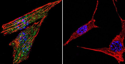 Immunocytochemistry/ Immunofluorescence - Anti-Glucocorticoid Receptor antibody (ab3578)