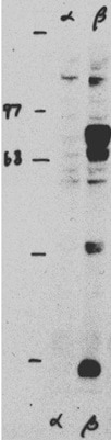 Western blot - Anti-Glucocorticoid Receptor beta antibody (ab3581)