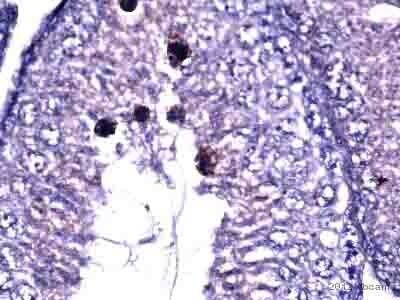 Immunohistochemistry (Formalin/PFA-fixed paraffin-embedded sections) - Anti-AGO3 antibody (ab3593)