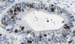 Immunohistochemistry (Formalin/PFA-fixed paraffin-embedded sections) - Anti-Aurora B antibody [mAbcam 3609] (ab3609)