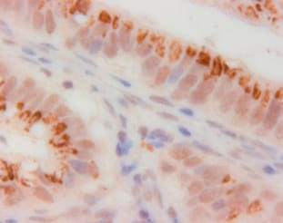 Immunohistochemistry (Formalin/PFA-fixed paraffin-embedded sections) - Anti-CDKN2A/p14ARF antibody (ab3642)