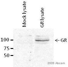 Western blot - Anti-Glucocorticoid Receptor antibody - ChIP Grade (ab3671)