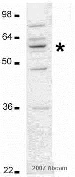 Western blot - Anti-P4HB antibody (ab3672)