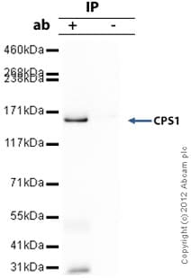 Immunoprecipitation - Anti-CPS1 antibody (ab3682)