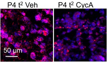 Immunocytochemistry/ Immunofluorescence - Anti-SOX9 antibody - ChIP Grade (ab3697)