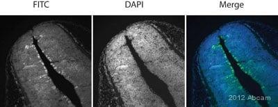 Immunohistochemistry (Formalin/PFA-fixed paraffin-embedded sections) - Anti-SOX9 antibody - ChIP Grade (ab3697)
