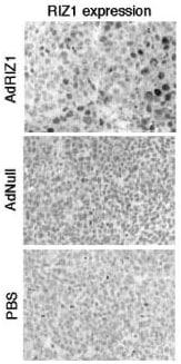 Immunohistochemistry (Formalin/PFA-fixed paraffin-embedded sections) - Anti-KMT8/Riz1/Riz2 antibody (ab3790)